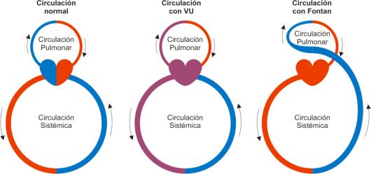 Circulación Pulmonar de tipo Fontan